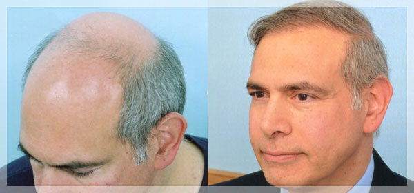 shaving your head to regrow hair