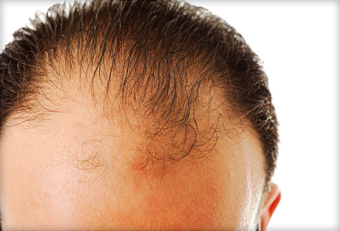how to regrow hair naturally and fast