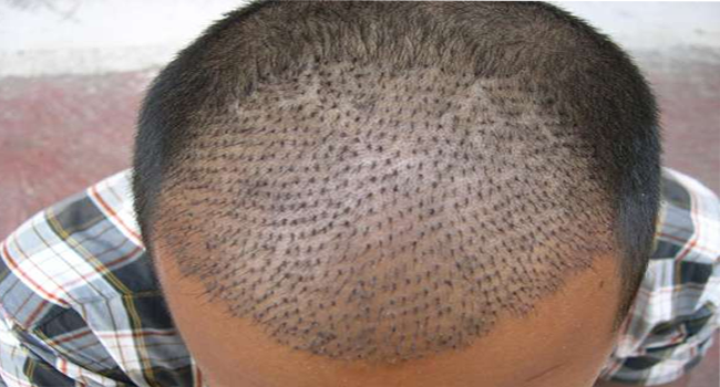 how to regrow hair on bald scalp