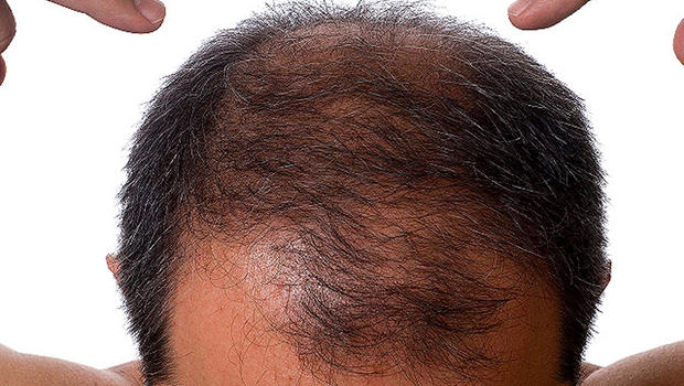 does zinc help regrow hair