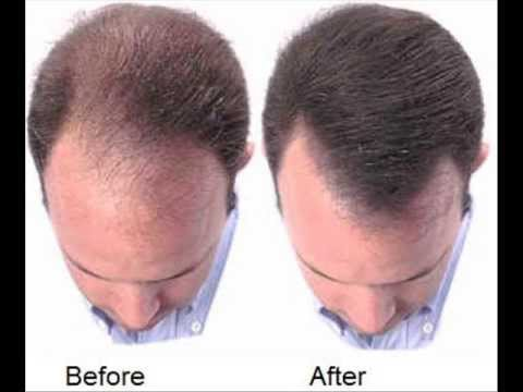 can a healthy diet regrow hair