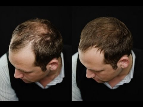 ways to regrow thinning hair