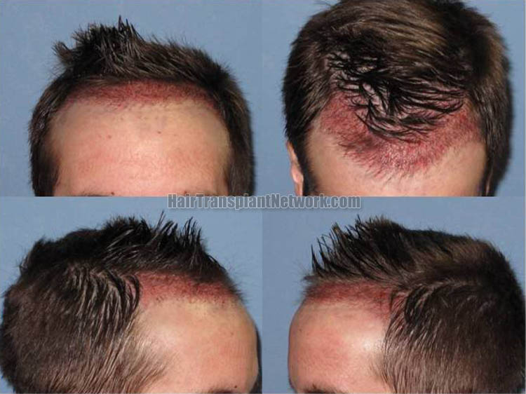 regrow hair on hairline
