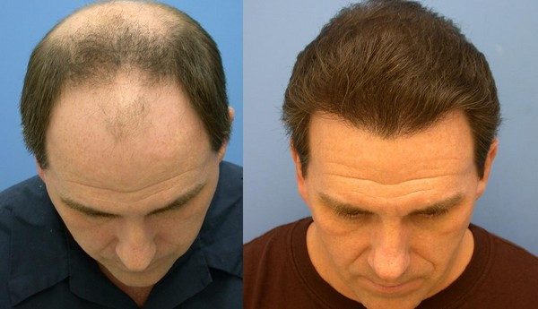 regrow hair on bald scalp