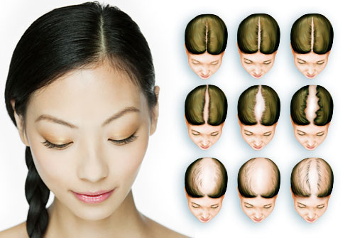 how to regrow lost frontal hair