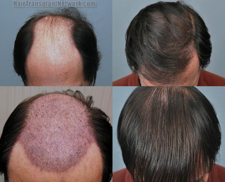 natural remedies to regrow lost hair