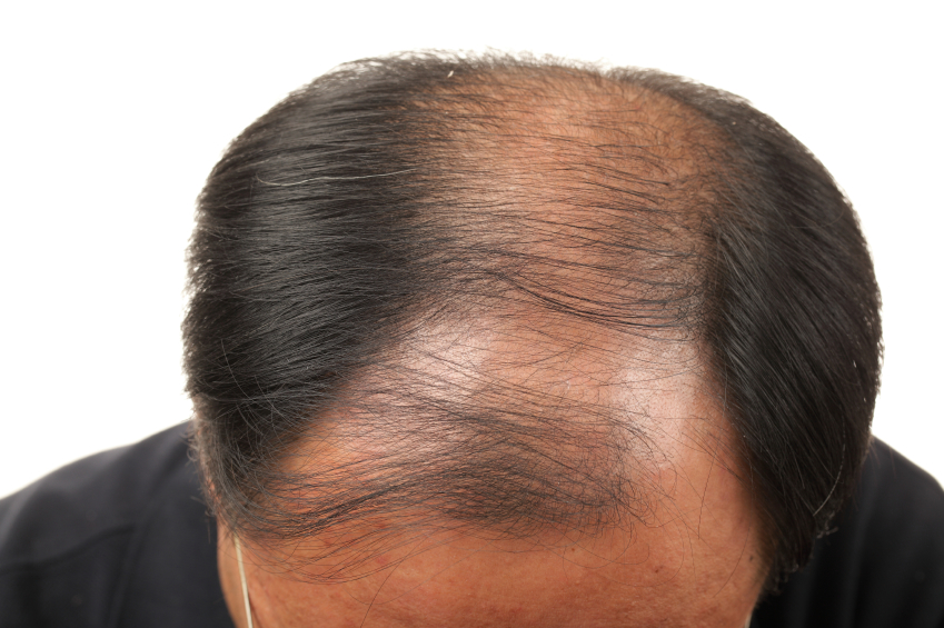 how to regrow hair on my scalp
