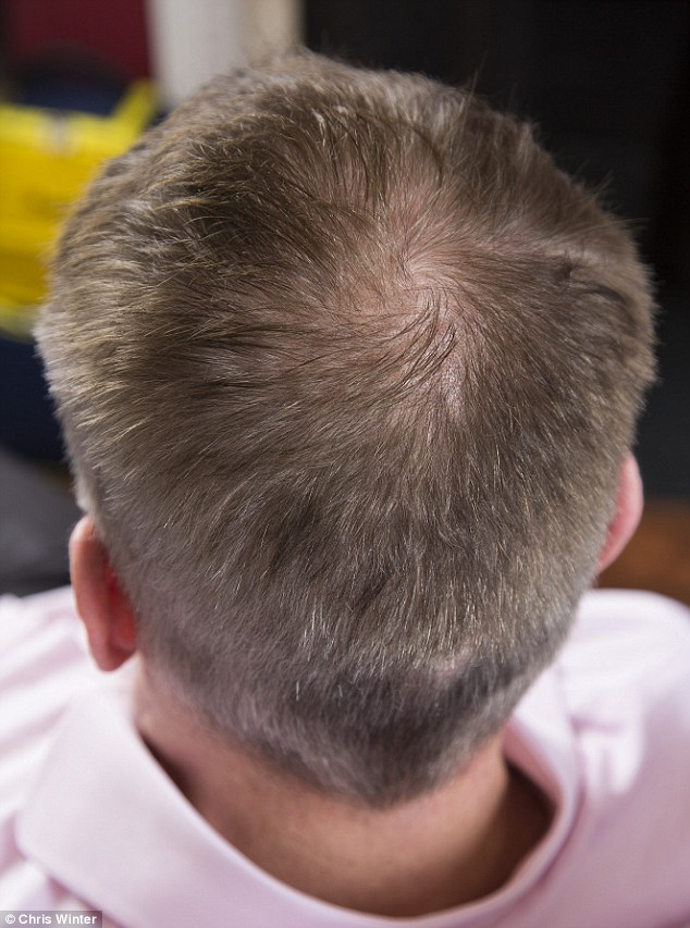 can you regrow hair at temples