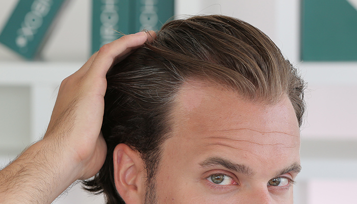 how to get hair to regrow