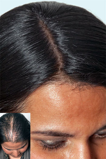 how to regrow hair from roots