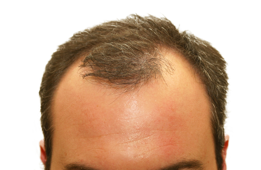 how to regrow hair from balding
