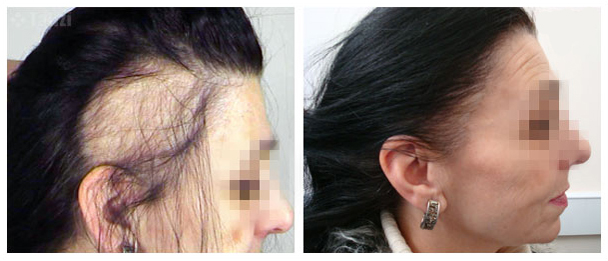 can hair regrow after folliculitis
