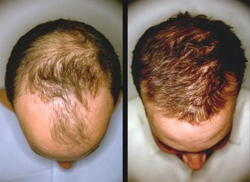 is it possible to regrow hair on crown naturally