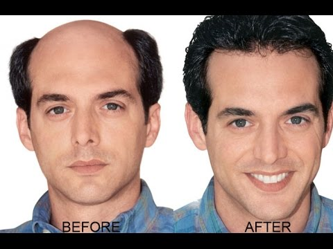 best remedy to regrow hair