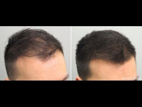 how to regrow hair in tamil